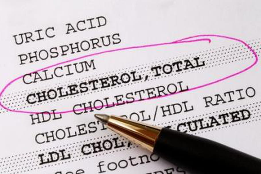 """Le """"bon"""" cholestérol remis en question"""
