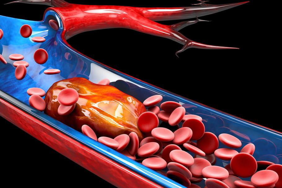 Embolie pulmonaire: symptômes, cause, un nouveau risque du Covid-19?