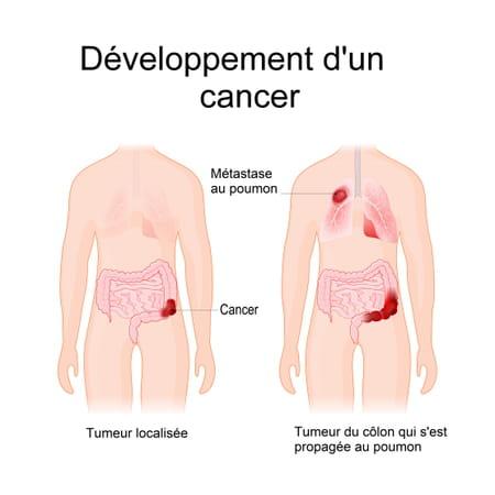 Schéma d'un cancer qui donne des métastases pulmonaires