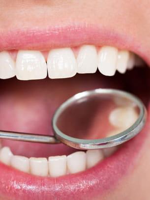 le nombre normal de dents est de 32 à l'âge adulte, 28 sans les 4 dents de
