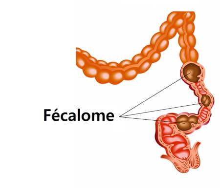 fecalome-constipation