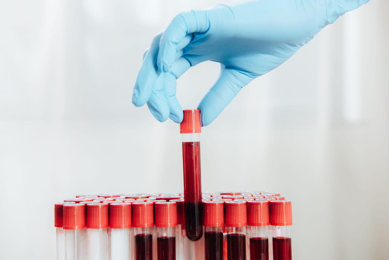 Immunoglobuline M - IgM: basse, élevée, causes, que faire?