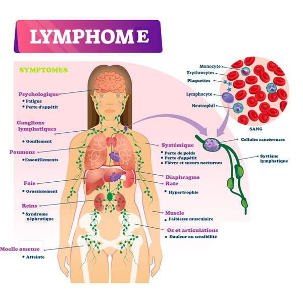 Symptômes d'un lymphome