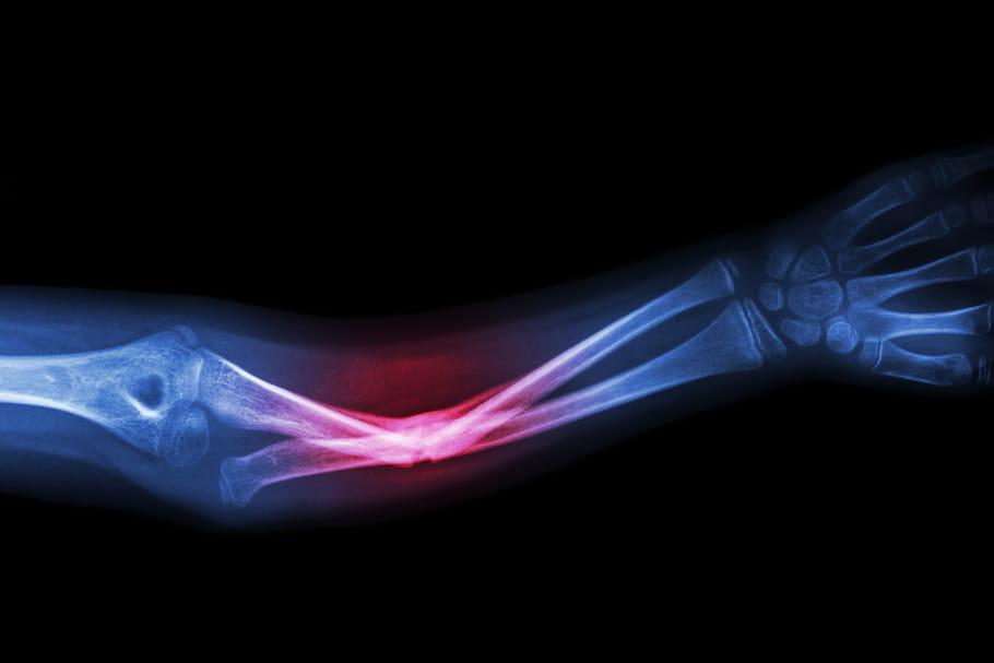 Lésion osseuse: causes, traumatisme ou signe d'un cancer des os?
