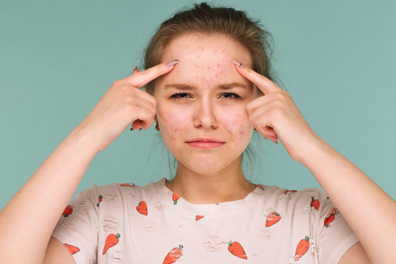 Stérilet et acné: cuivre, hormonal, le retirer?