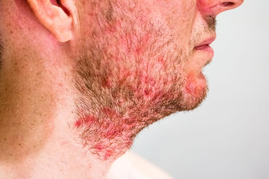 Dermite séborrhéique: symptômes et traitements du visage, des cheveux
