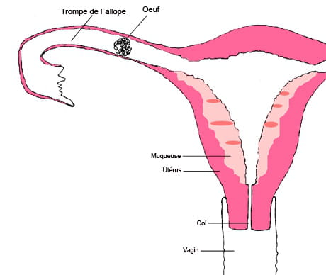 Grossesse extra ut rine sympt mes et taux de hcg sant - Fausse couche grossesse extra uterine ...