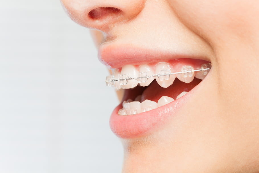 Appareil dentaire: indications, modèles, quand en porter?