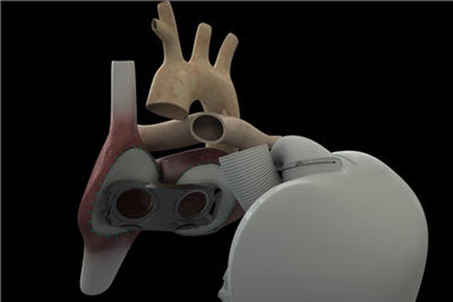 Cœur artificiel : le premier greffé est décédé