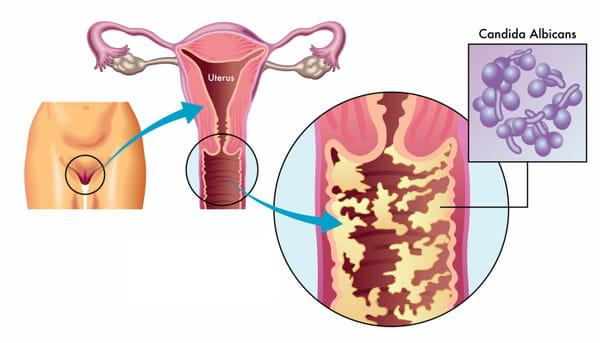 Schéma d'une mycose vaginale