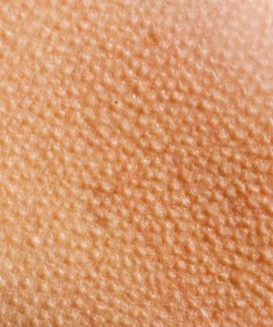les petits points sur lapeau correspondent au bulbe des poils.