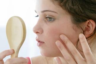 Un point sur les différents types de lésions cutanées sur le visage, leurs  symptômes, et les traitements adaptés. 4f4abdc0f1c
