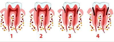 schéma de formation d'une parodontite.