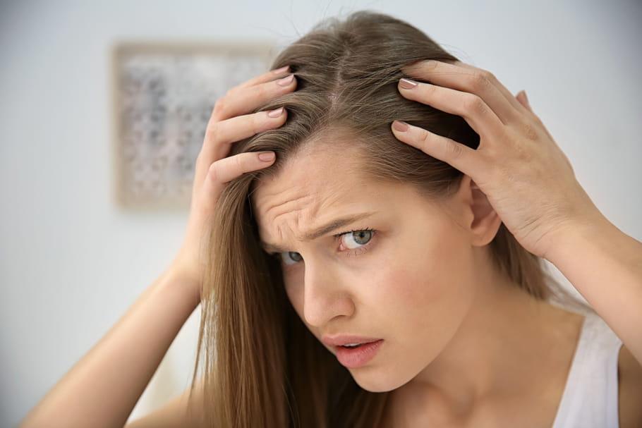 Calvitie: quelles causes, que faire?