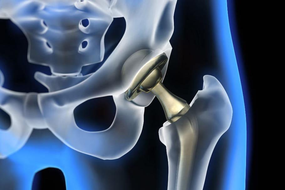 L'affaire des prothèses de hanche pointe (encore) des failles de surveillance