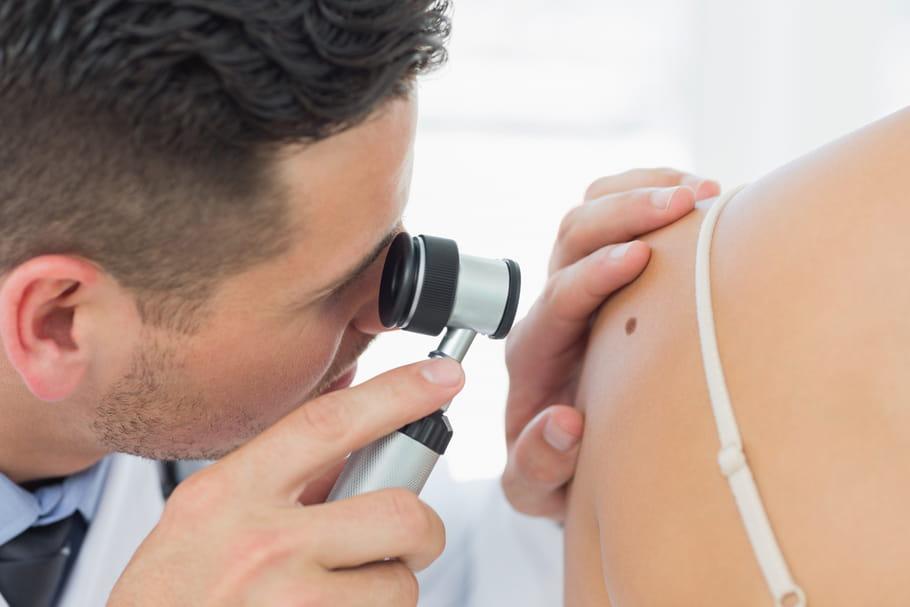 Cancer de la peau : apprenez à limiter les risques