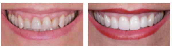 avant-apres-dent-facette
