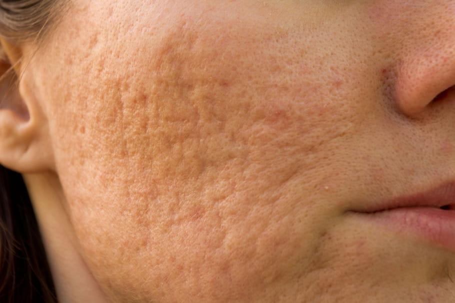 Cicatrices d'acné: crème, laser, peeling, comment les enlever?