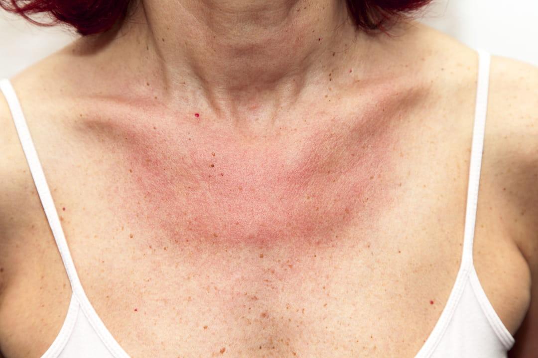 Allergie au soleil : que faire ?